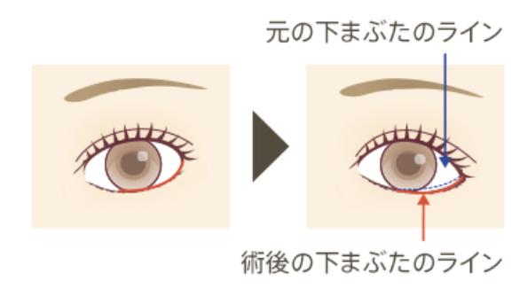 タレ目整形のイメージ図
